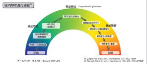 Glaucomaweinreb02